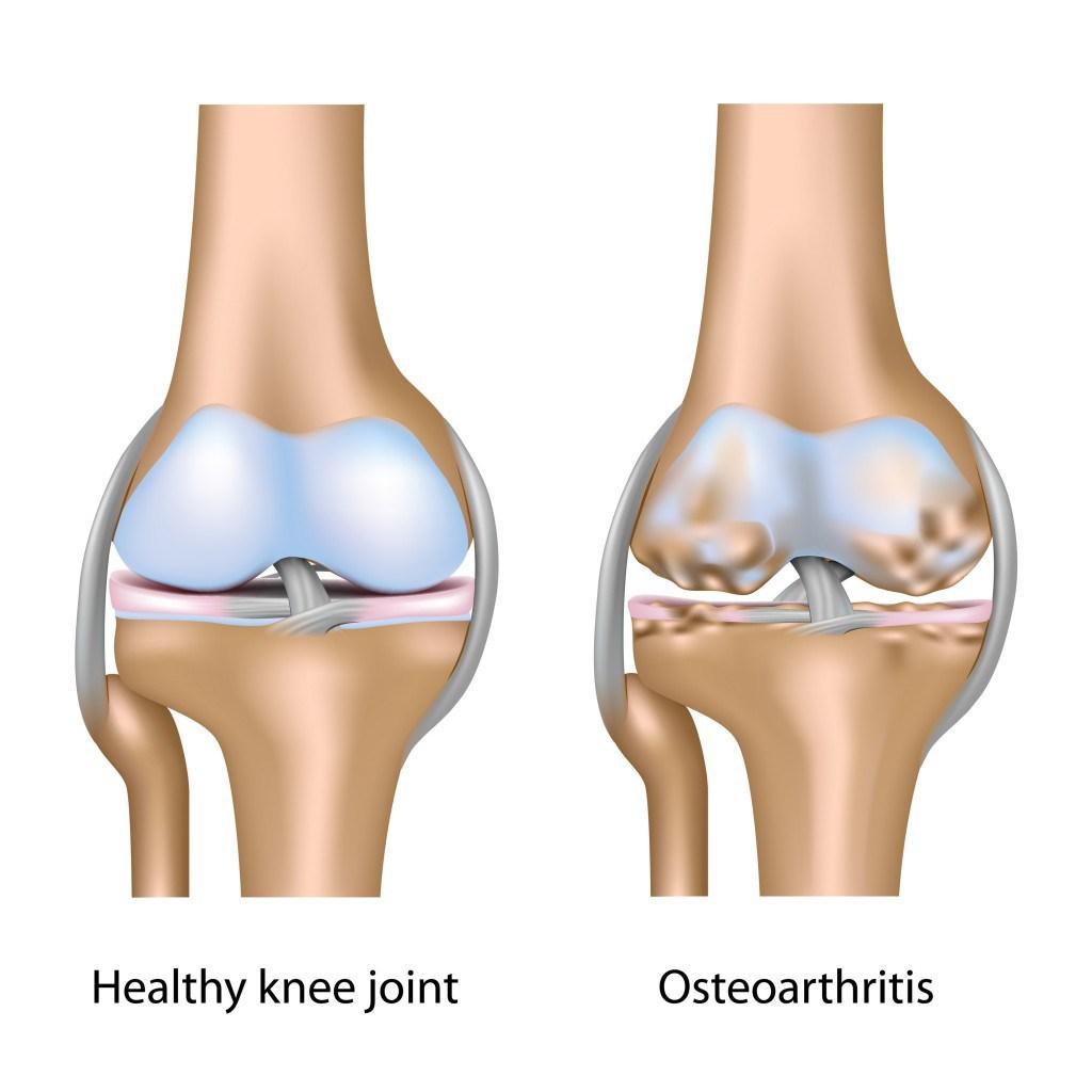 Artrita – tratata cu lipitori