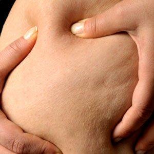 Celulita – o problema ce supara majoritatea femeilor.