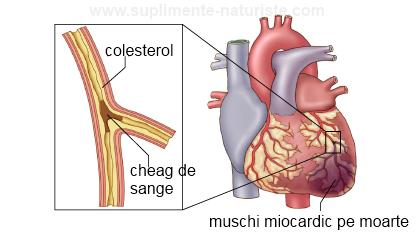 Infarct de miocard – tratat cu lipitori